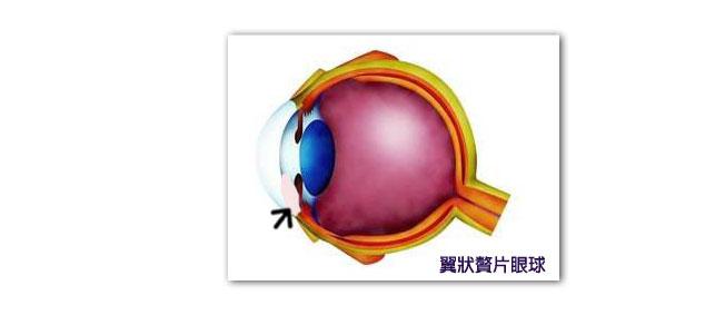 白眼球上长了胬肉图片_翼状胬肉的治疗与预防
